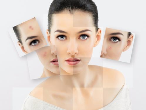 Hypnose, eczema, psoriasis, zona, urticaire, verrue, peau, Calais